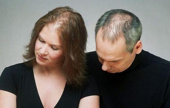 queda de cabelo Ravera